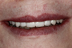 full smile corrected with veneers