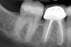 x-ray of teeth after root canal