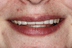 whitened teeth after color correction