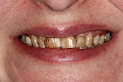 extremely discolored teeth before