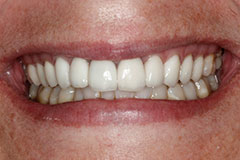 smile after gum contouring