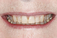 patients smile after veneer removal