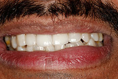 Man's tooth after veneer placement