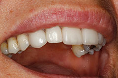 smile with dental implant placed