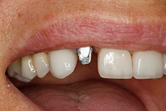 smile with silver implant