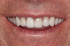 man's smile with whitened teeth