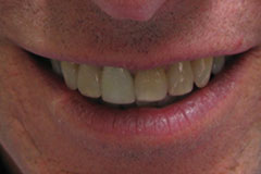 man's smile before professional whitening
