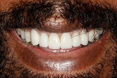 man's smile after color correcting