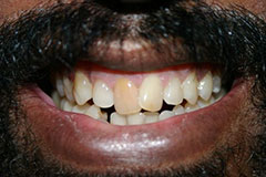 man's smile with discolored front teeth