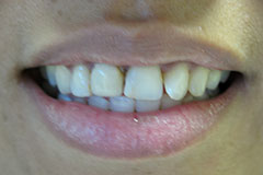 woman's teeth incorrectly shaped