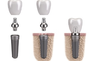 dental implants parts