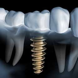 X-ray of a patient with a dental implant
